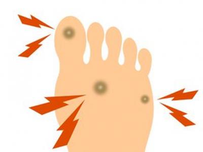 نصائح علاج مسمار القدم