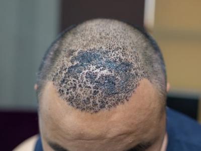 نصائح ومعلومات حول زراعة الشعر