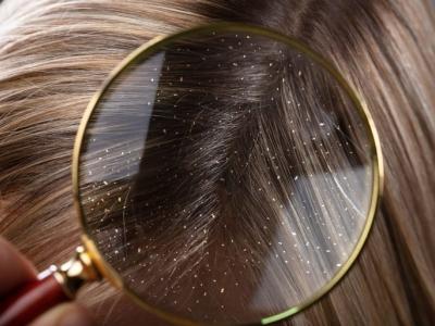 نصائح ومعلومات عن  قشرة الرأس وعلاجها