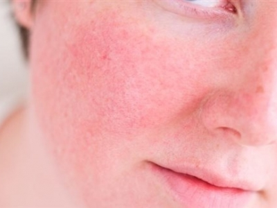 مرض الوردية طبياً