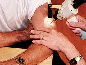 علاج سرطان الجلد طبيا