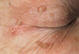 اسباب الزوائد الجلدية وكيفية ازالتها طبياً