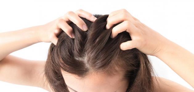 ما سبب عودة الحبوب المتقحية في فروة رأسي بعد انتهاء العلاج؟
