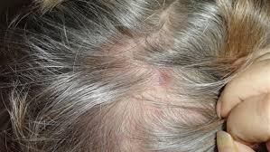 ما تشخيصكم لظهور حبوب حمراء في فروة الرأس أعقبها تساقط الشعر؟