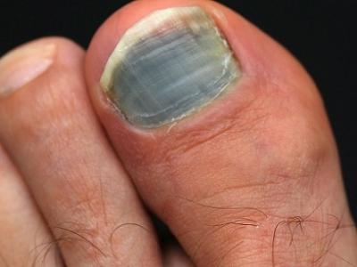 أظافر قدمي بها شقوق ولونها ليس طبيعيا، فما السبب؟