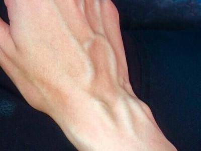 لاحظت بروز عروق كثيرة في يدي وجبهتي..فهل هذا طبيعي؟