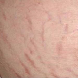 ظهرت لدي تشققات حمراء مؤلمة بعد أن زاد وزني، فما العلاج؟