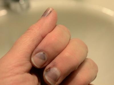 كيف أتخلص من البقع الداكنة الموجودة تحت الأظافر؟