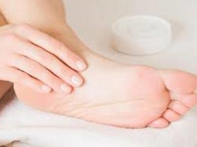 هل يفيد كريم ديكسابانيثيول في علاج تشققات القدمين؟