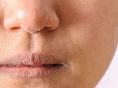 جفاف بالبشرة عند البرد يسبب تغيرا بالجلد ... فما العلاج؟