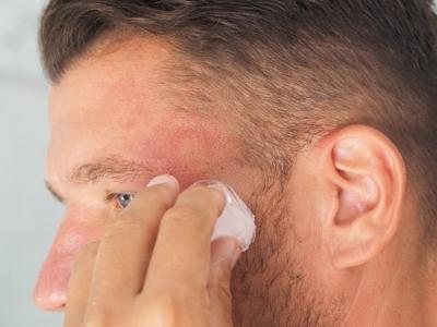 لدي تورم في وجهي وجرح دائم في أنفي، كيف أتخلص منهما؟