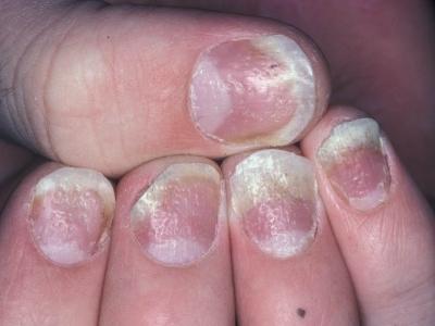 ما هو علاج صدفية الأظافر؟