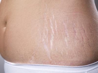 ما العلاج للتخلص من حبوب الشباب والتشققات الجلدية؟