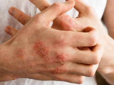 ظهرت لي تشققات جلدية على اليد، فهل الكولونيا هي السبب؟