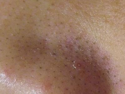 ما العلاج لاسوداد الأنف وتفتح مسامات البشرة؟