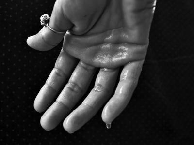 معاناتي مع تعرق اليدين والرجلين تزداد يوماً بعد يوم، فما العلاج؟