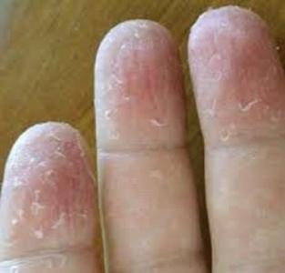 ما علاج تشققات الأصابع؟