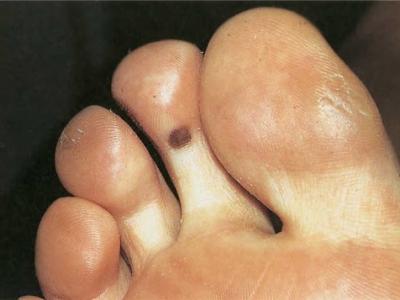 وجود الوحمات على ظاهر وباطن القدم، أخطارها وإزالتها