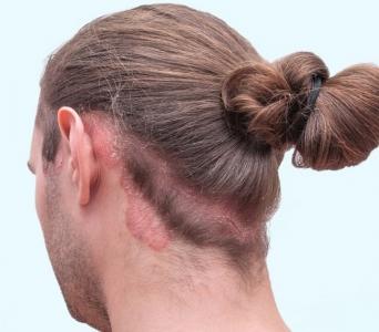 هل مرض الصدفية في الرأس يؤثر على الشعر؟