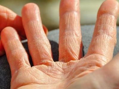 إكزيما اليدين وعلاجها