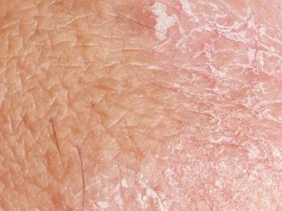 علاج أثار الإكزيما