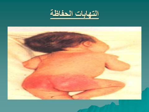 التهابات الحفاظة