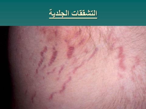التشققات الجلدية