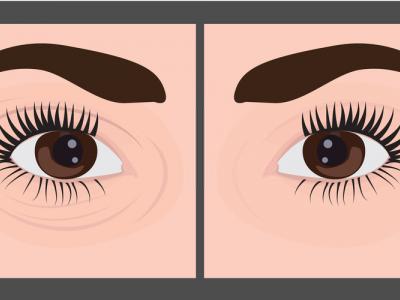 علاج للهالات السوداء حول العينين - الدكتور حسن العماري