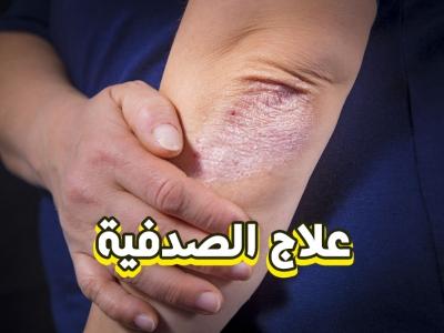 حقيقة علاج مرض الصدفية نهائياً - الدكتور حسن العماري