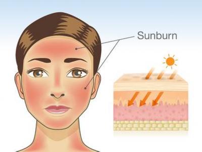 اضرار الشمس على البشرة - للدكتور حسن العماري