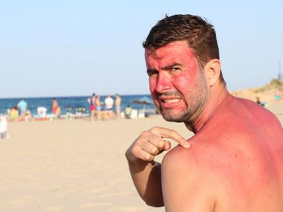 كيف تحمي جلدك من أضرار الشمس؟