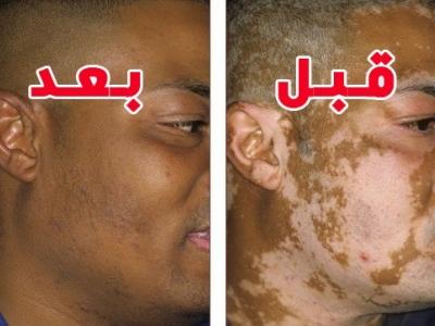 طرق علاج البهاق - الدكتور حسن العماري